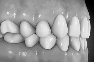 implantate_05