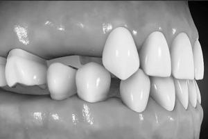 implantate_06