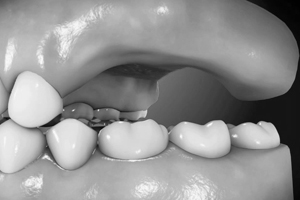 implantate_09