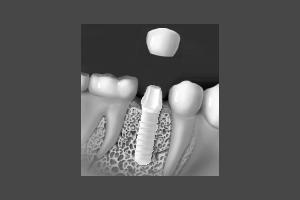 implantate_34